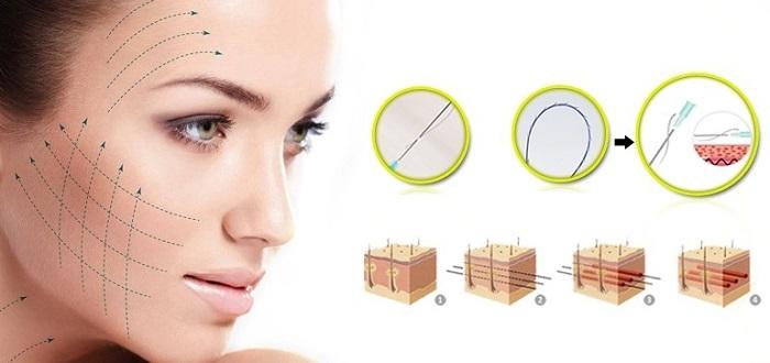 Hình ảnh 3D mô phỏng kỹ thuật căng da mặt bằng chỉ không cần phẫu thuật