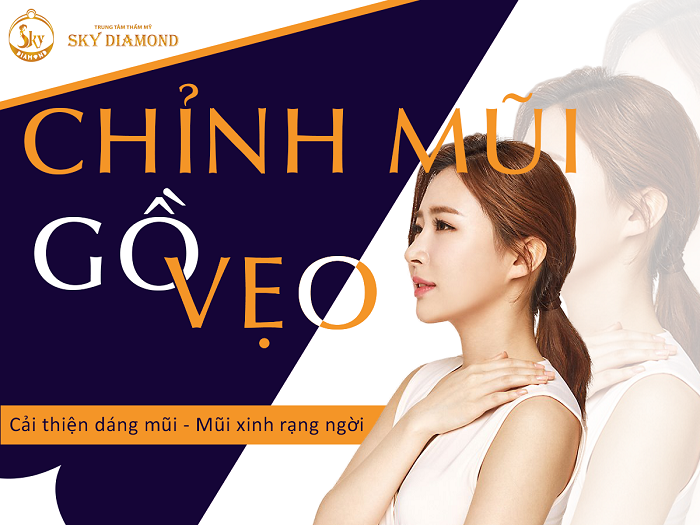 chinh-mui-go-veo