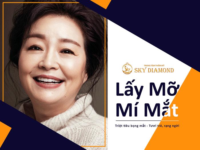 lay-mo-mi-mat