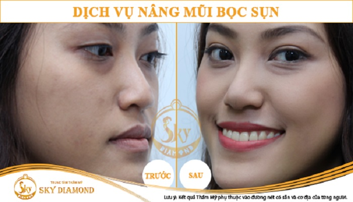 nang-mui-boc-sun