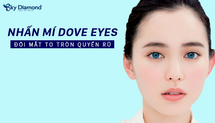 Nhấn-mí-Dove-eyes