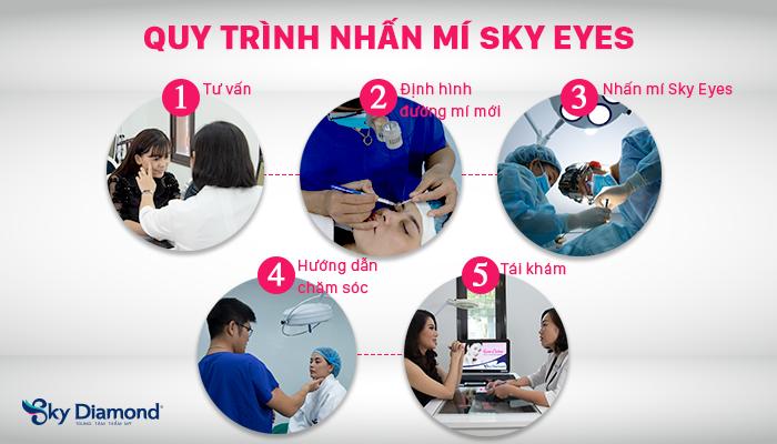 quy-trình-Nhấn-mí-Sky-Eyes