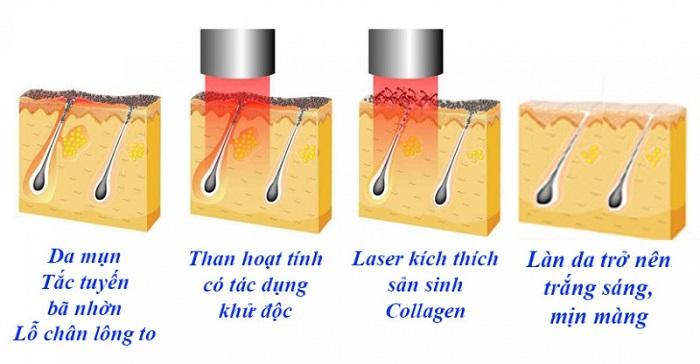 Laser Carbon trắng sáng làn da