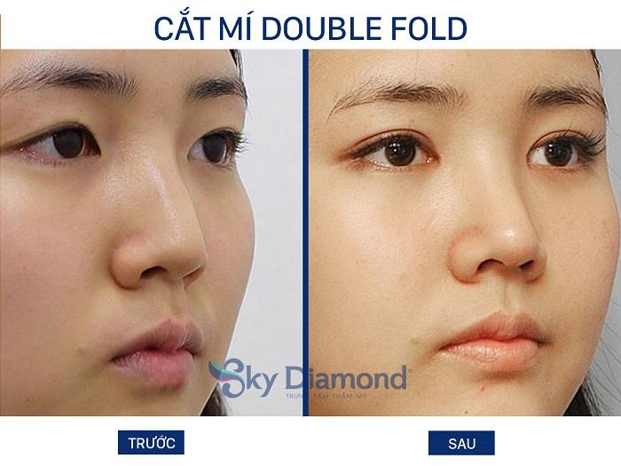 Cat-mi-double-fold-2