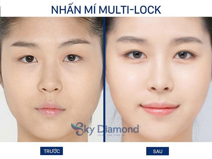 Nhan-mi-Ml-4