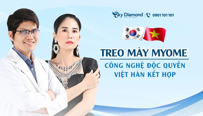 Treo mày Myome - công nghệ độc quyền Việt Hàn kết hợp