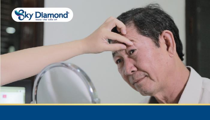Sụp mí mắt ở người lớn tuổi thường gây suy giảm thị lực