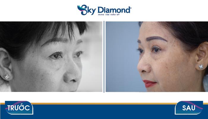 Trước và sau treo mày Myome tại Sky Diamond