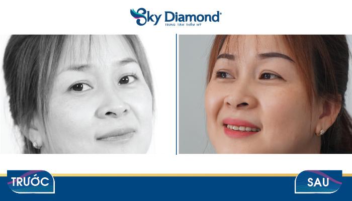 Chị Bùi Thị Dung cũng đã trẻ hơn 5 tuổi sau Treo mày tại Sky Diamond