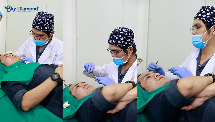 Diễn viên Hùng Thuận thực hiện công nghệ SRM điều trị sẹo rỗ tại Sky Diamond