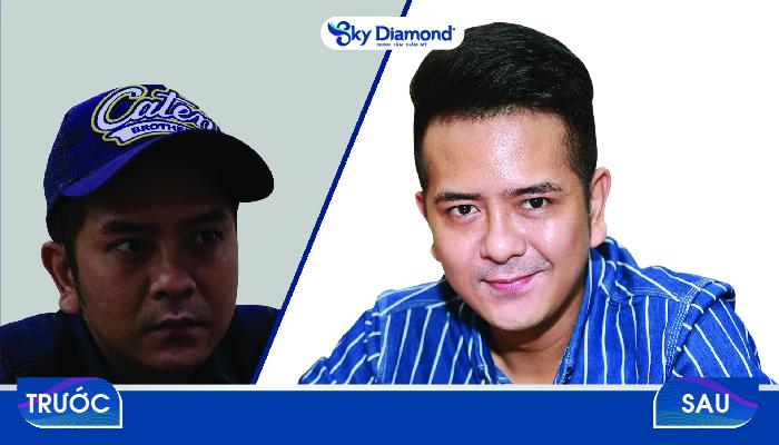 Diễn viên Hùng Thuận trước và sau khi điều trị sẹo rỗ tại Sky Diamond