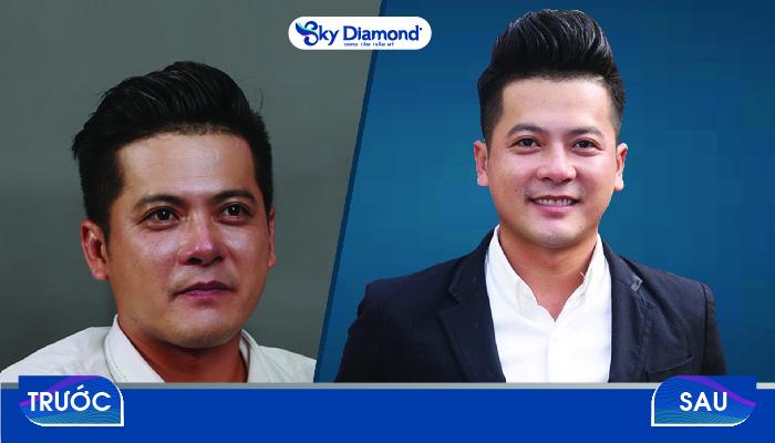 Diễn viên Hoàng Anh trước và sau khi trị sẹo rỗ tại Sky Diamond