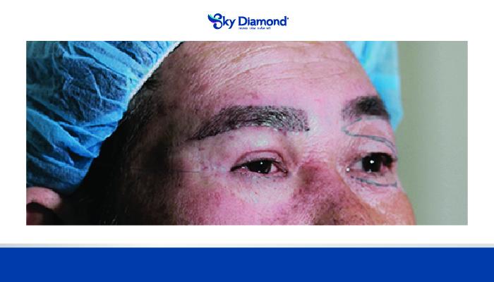 Treo mày Myome kết hợp loại bỏ da chùng và cải thiện co cơ mí mắt
