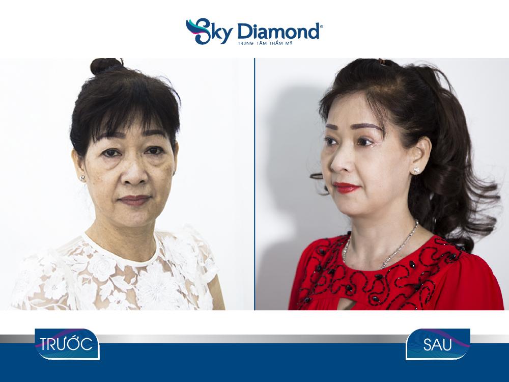 Trước và sau treo mày 5D Gold