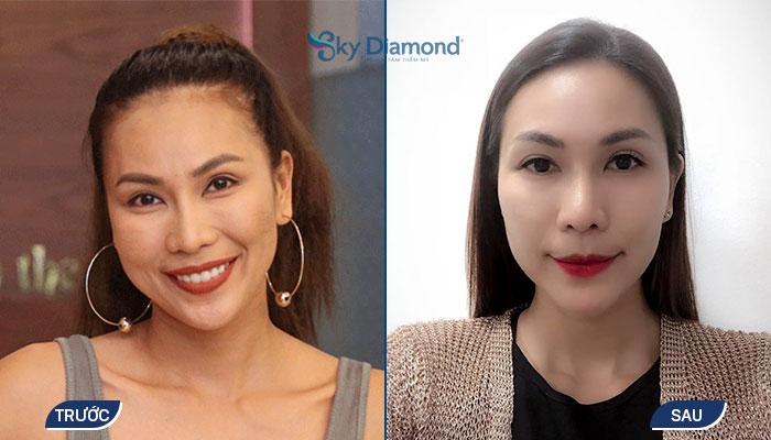 Khánh Ngọc trước và sau trẻ hóa da SRM Meso tại Sky Diamond