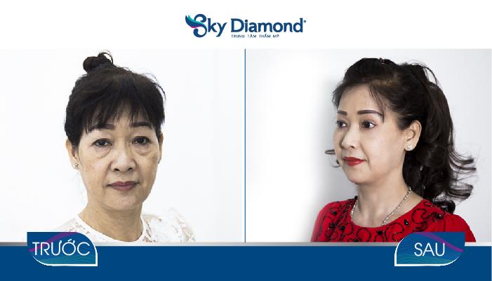 Kết quả trẻ hóa mắt toàn diện sau treo mày
