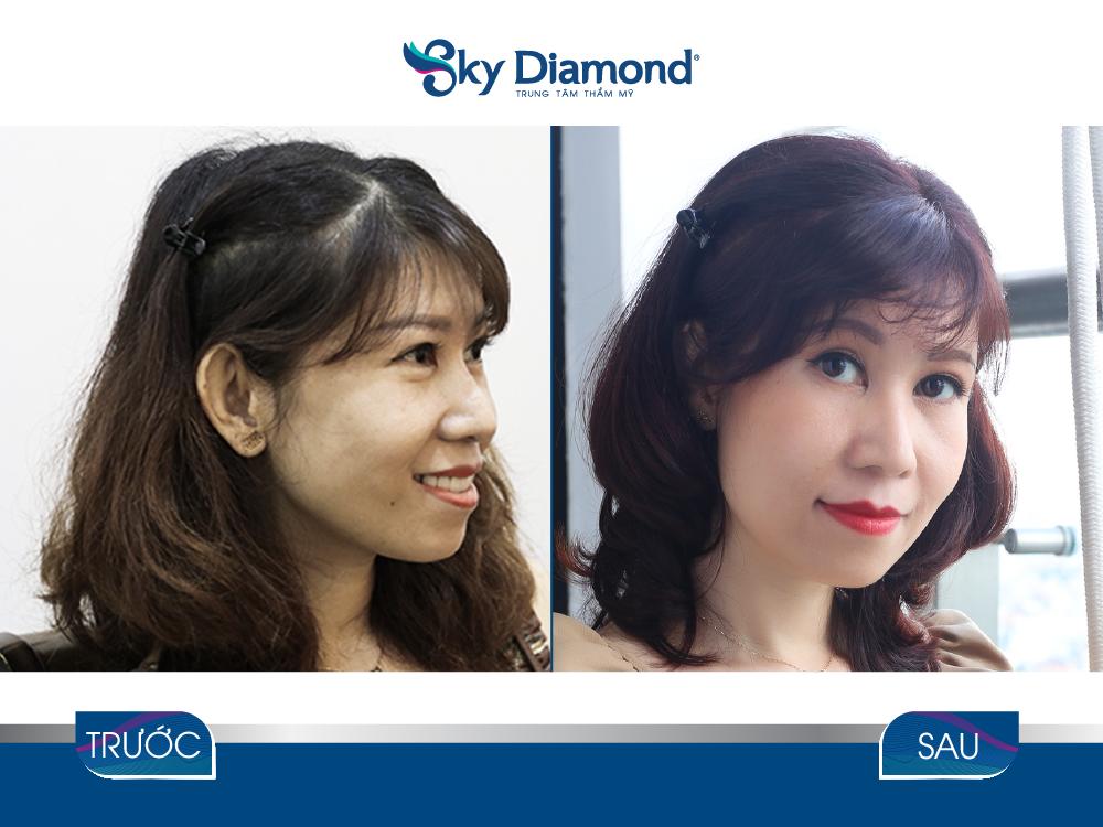 Khách hàng trước và sau treo mày Myome tại Sky Diamond