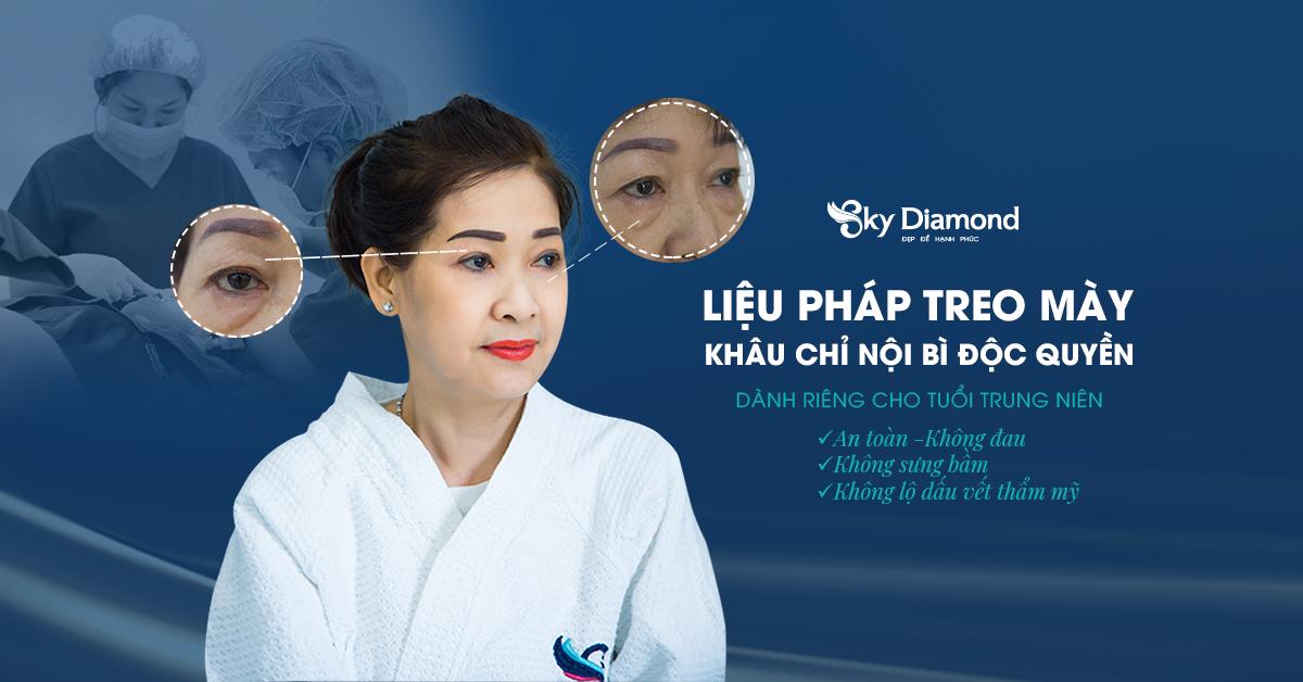Lieu-phap-treo-may-khau-chi-noi-bi-1200x628